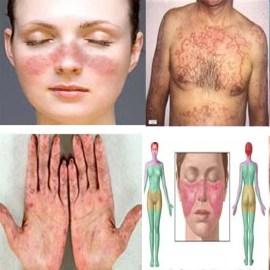 Obat Penyakit Lupus Herbal Alami Detikforum